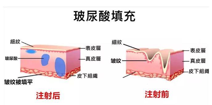 """干细胞:比玻尿酸还要神奇100倍的美容""""神器"""""""
