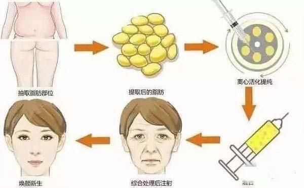 上海玻尿酸美容效果