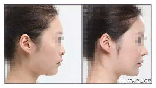 中国隆鼻最好的整形医院