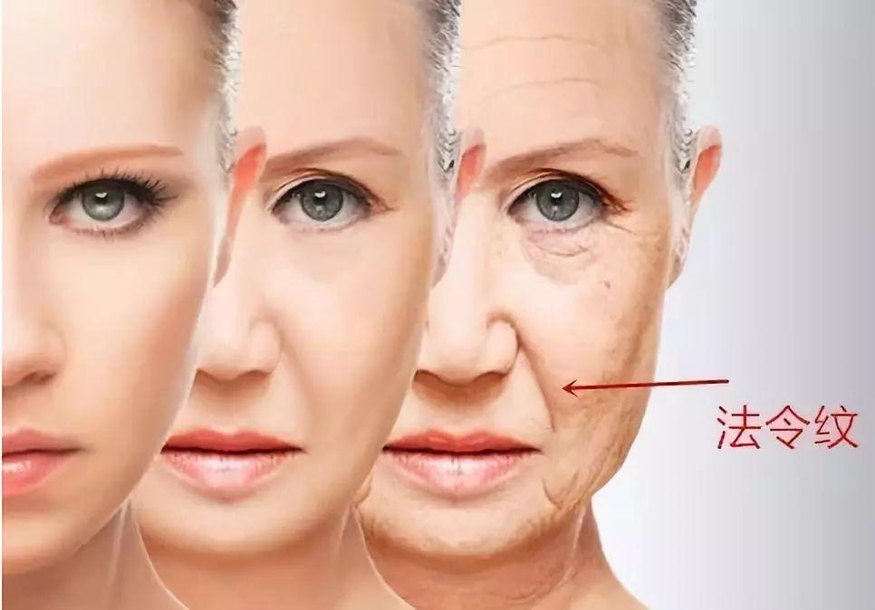 抗皱防衰老之法令纹(二)法令纹是怎样产生的(多图)