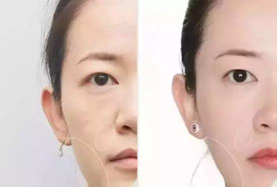 30岁以后,最佳的护脸姿势很可能是线雕!| 日本整容整形