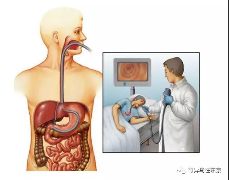 日本胃癌5年生存率高达74.5%居世界第一 他们做对了什么| 日本整容整