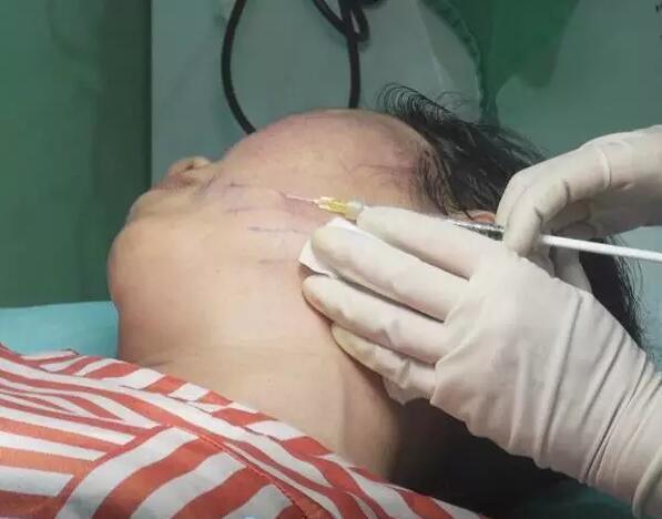 面部埋线提升(线雕)的作用及适用部位