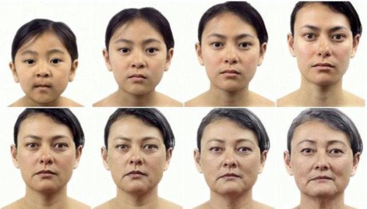 埋线提升为什么面部会出现凹陷?