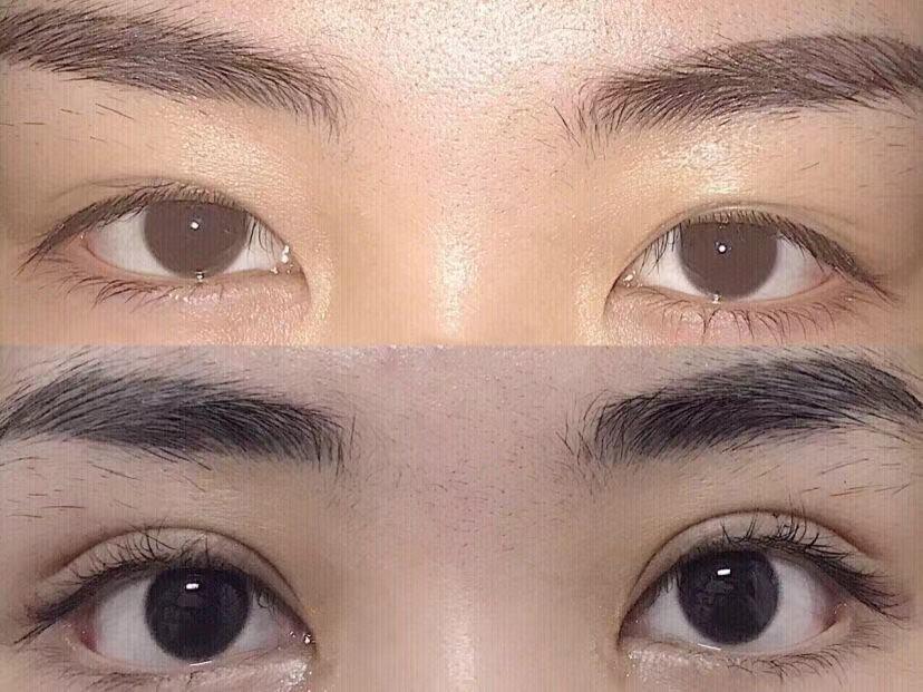 双眼皮全切手术