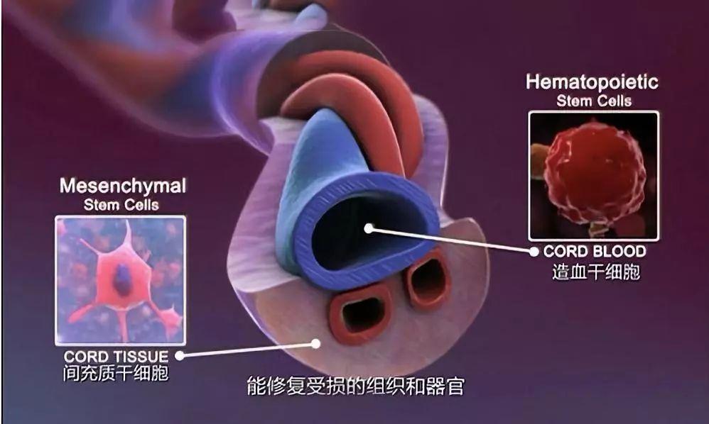 干细胞治疗