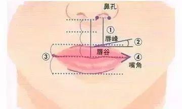 做正畸还是做唇部整形手术?