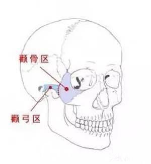 颧骨手术疼不疼?手术后7天可以恢复吗?