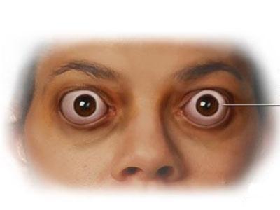 做双眼皮手术可以改变金鱼眼吗?