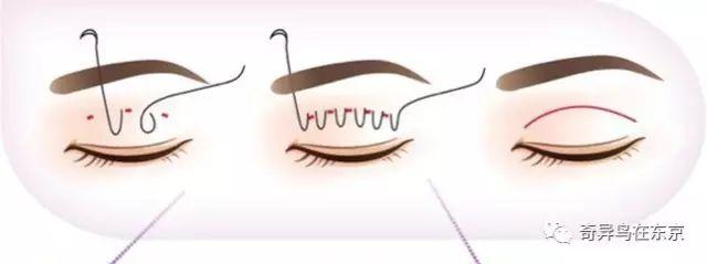 你应该选择哪种双眼皮手术?双眼皮知识大科普下(内附对比图)