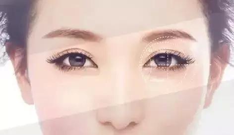 双眼皮手术效果能保持多久?双眼皮的基础知识都在这里啦