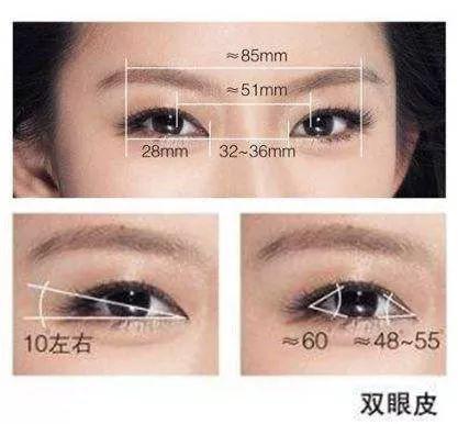 双眼皮手术越宽越好?(内附失敗案例图)
