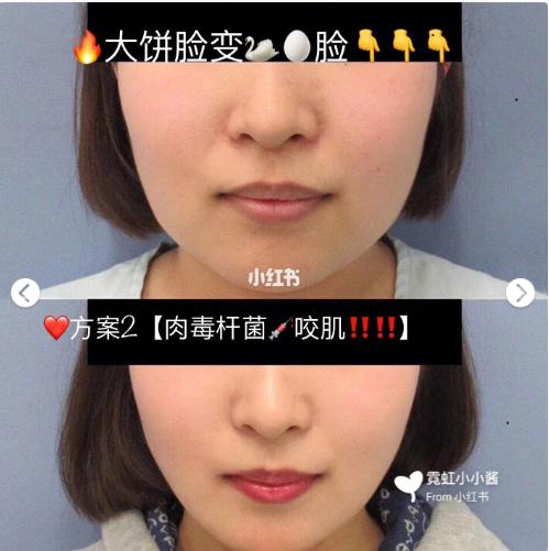 大饼脸变小V脸:面部吸脂还是打肉毒素?(内附对比图)