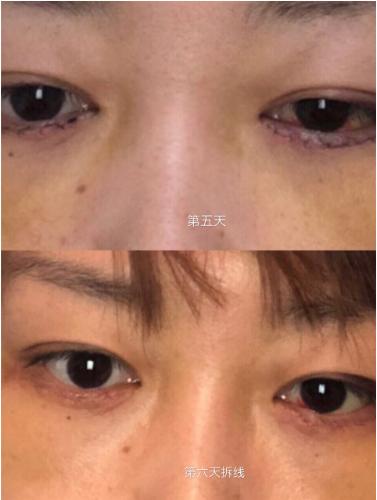 眼袋怎么消除?我在日本做了祛眼袋的手术(内附对比图)