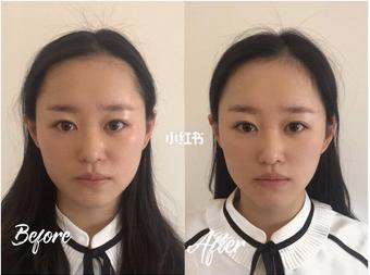 日式小颜整骨术:说瘦脸就瘦脸