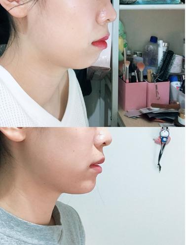 玻尿酸隆下巴