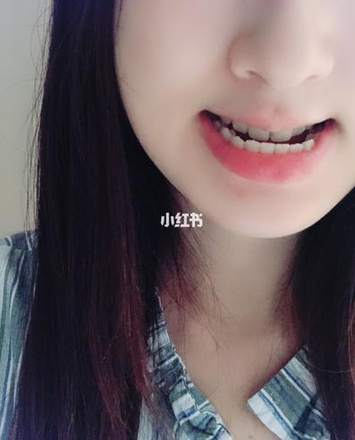 我正颌的手术住院经历