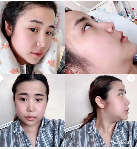 远离地包天:正颌手术全过程