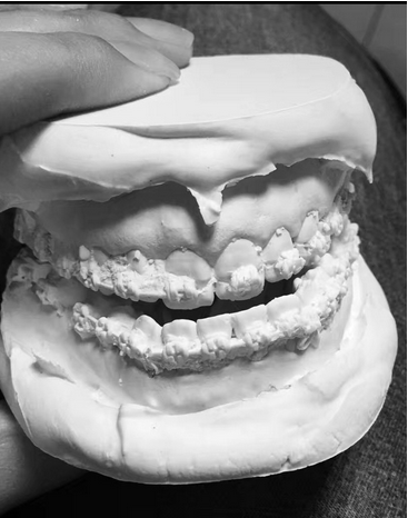 终于做了正颌手术告别了偏颌