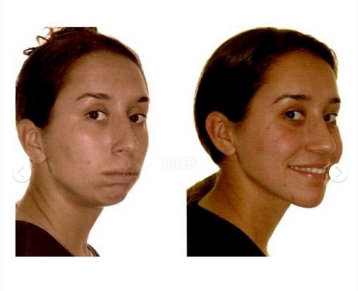正颌手术有哪些风险?会感染吗?