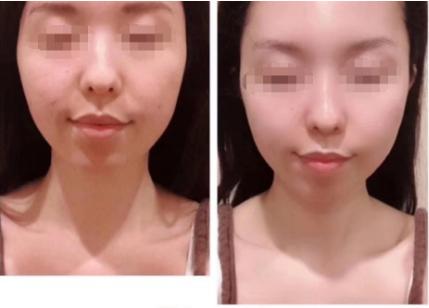 日式筋膜小颜术有哪些功效?有没有什么副作用?