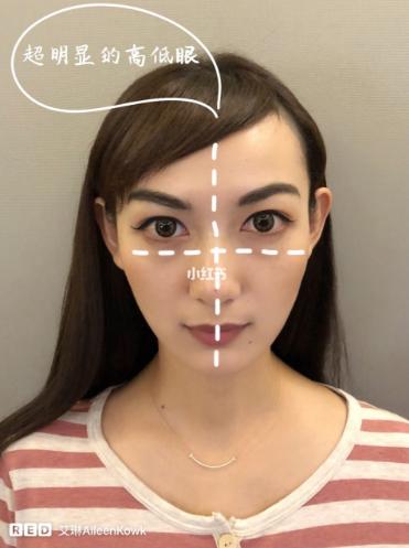 不用动刀就可以让脸部对称的方法:日式小颜整骨