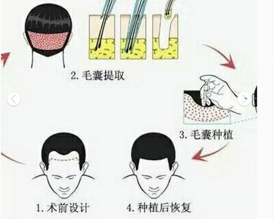 毛发种植一般需要移植多少个毛囊?