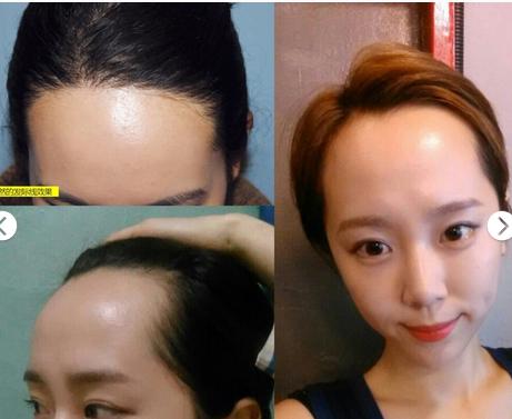 种植发际线可以提高颜值吗?过程疼吗?(内附对比图)